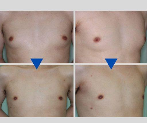 偽性女性化乳房 脂肪吸引 症例4