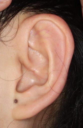 耳介形成4 術後 耳正面