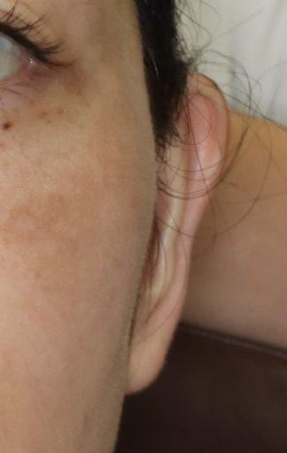 耳介形成4 術後 顔正面