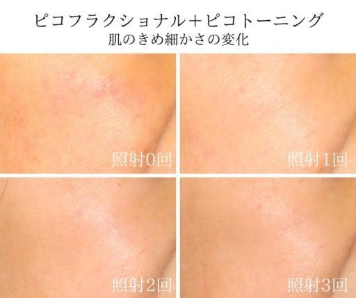 ピコフラクショナルの肌のきめの経過
