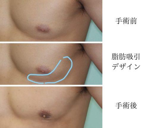 女性化乳房 脂肪吸引デザイン左胸