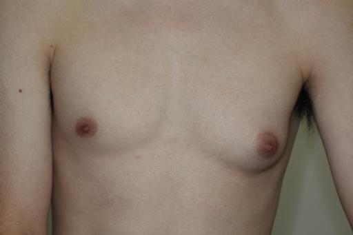 女性化乳房 左胸