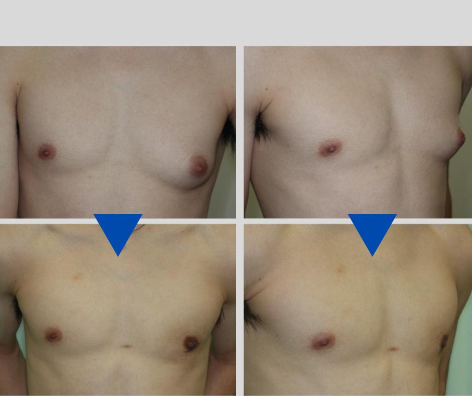 筋トレで鍛えた体の女性化乳房