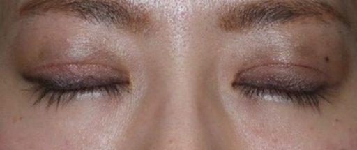 二重整形切開法症例20代女性 手術3ヶ月後 閉眼