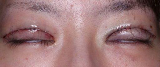 二重整形切開法症例20代女性 手術直後 閉眼