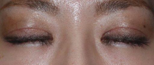 二重整形切開法症例20代女性 手術1ヶ月後 閉眼
