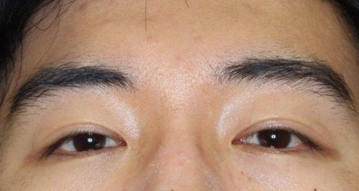 二重整形切開法手術8ヶ月後 20代男性