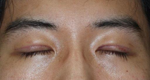 二重整形切開法手術1週間後 20代男性 閉眼