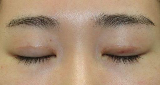 二重整形切開法 手術後1ヶ月閉眼