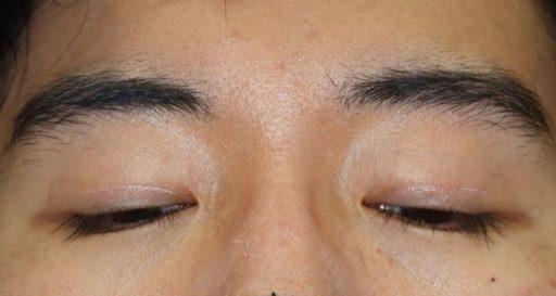 二重整形切開法手術8ヶ月後 20代男性下方視