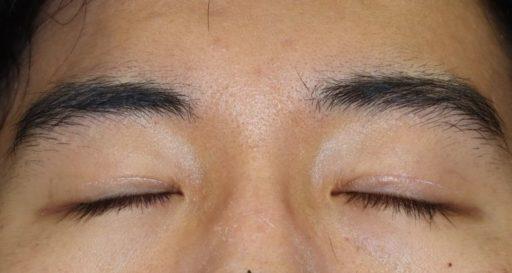 二重整形切開法手術8ヶ月後 20代男性閉眼