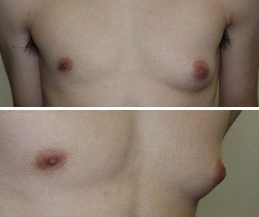 真性女性化乳房_20代_保険適用