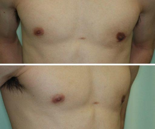 真性女性化乳房_20代_保険適用 術後3ヶ月