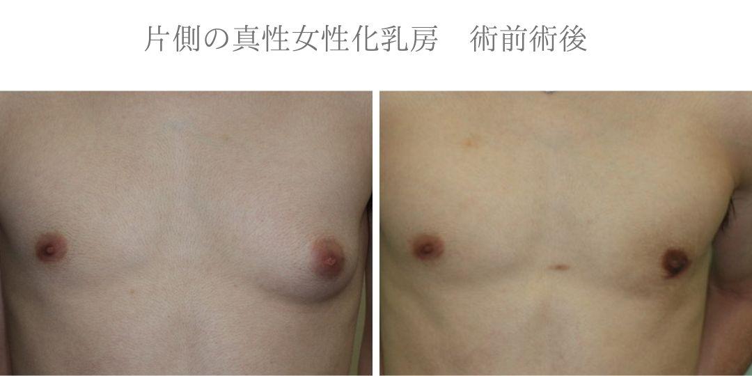 片側の真性女性化乳房症例写真