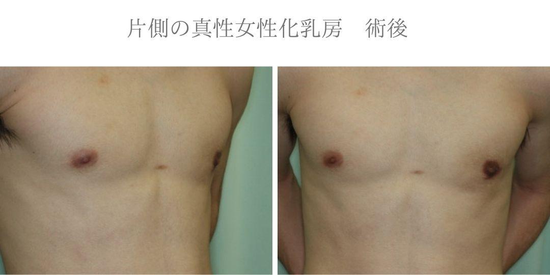 片側の真性女性化乳房術後症例写真